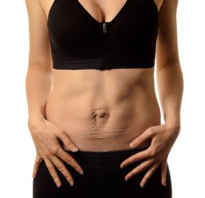 abdominal pain after woman pregnancy is diastasis