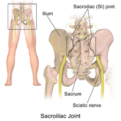 Sacroiliac Joint post pregnancy pain