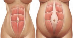 abdominal diastasis