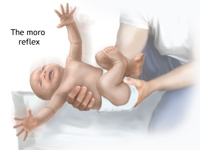 Moro reflex in new born, baby physiotherapy information, primitive reflex in infant