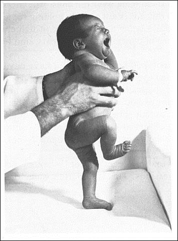 Walking reflex in infant primitive reflex in infant, baby physiotherapy information