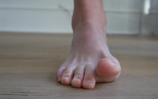 Plantar-Fasciitis-What-is-it-How-to-treat-it-causes